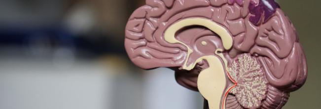 Udar mózgu – objawy i rodzaje