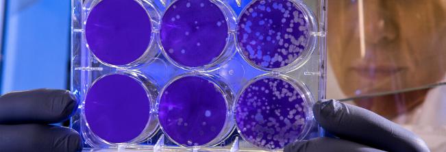 Leczenie stwardnienia rozsianego ze wparciem mikroflory jelitowej